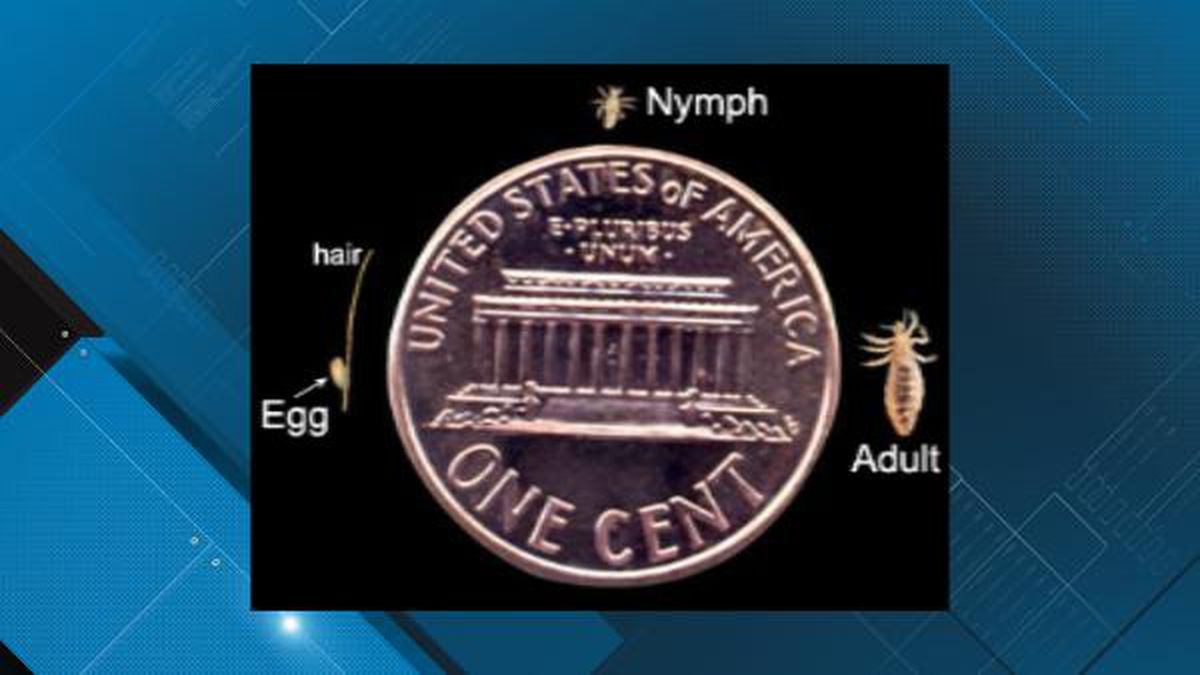 Actual size of the three lice forms compared to a penny. (CDC Photo)
